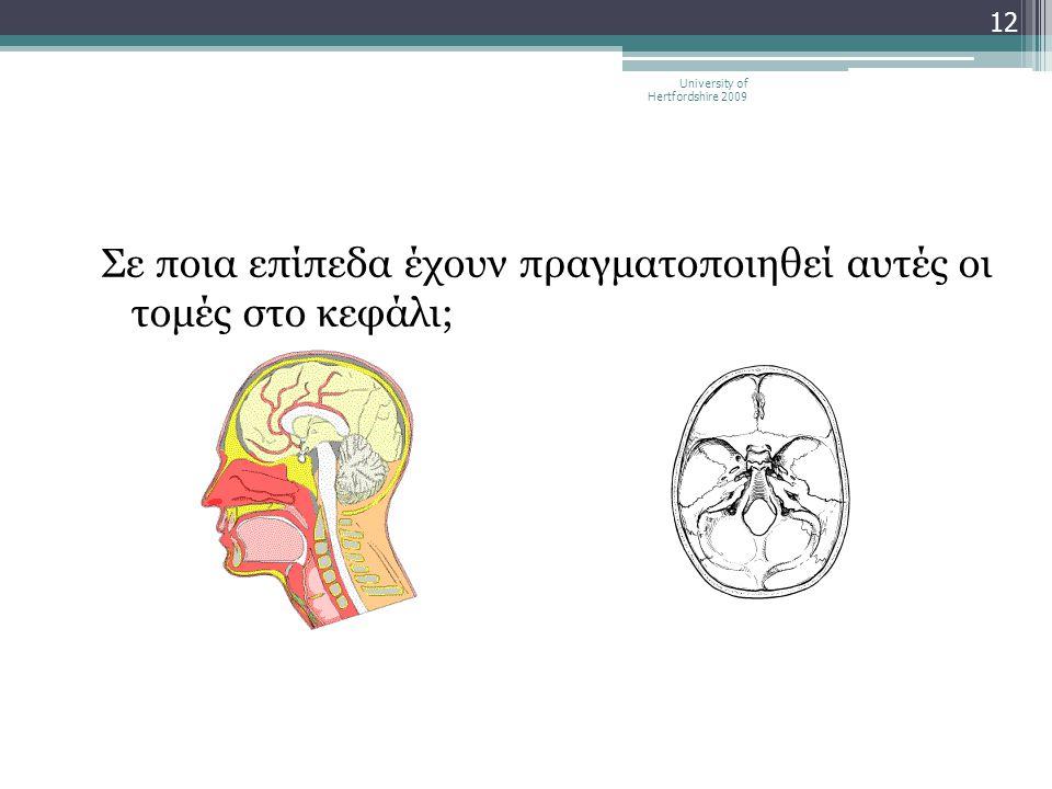 Σε ποια επίπεδα έχουν πραγματοποιηθεί αυτές οι τομές στο κεφάλι;