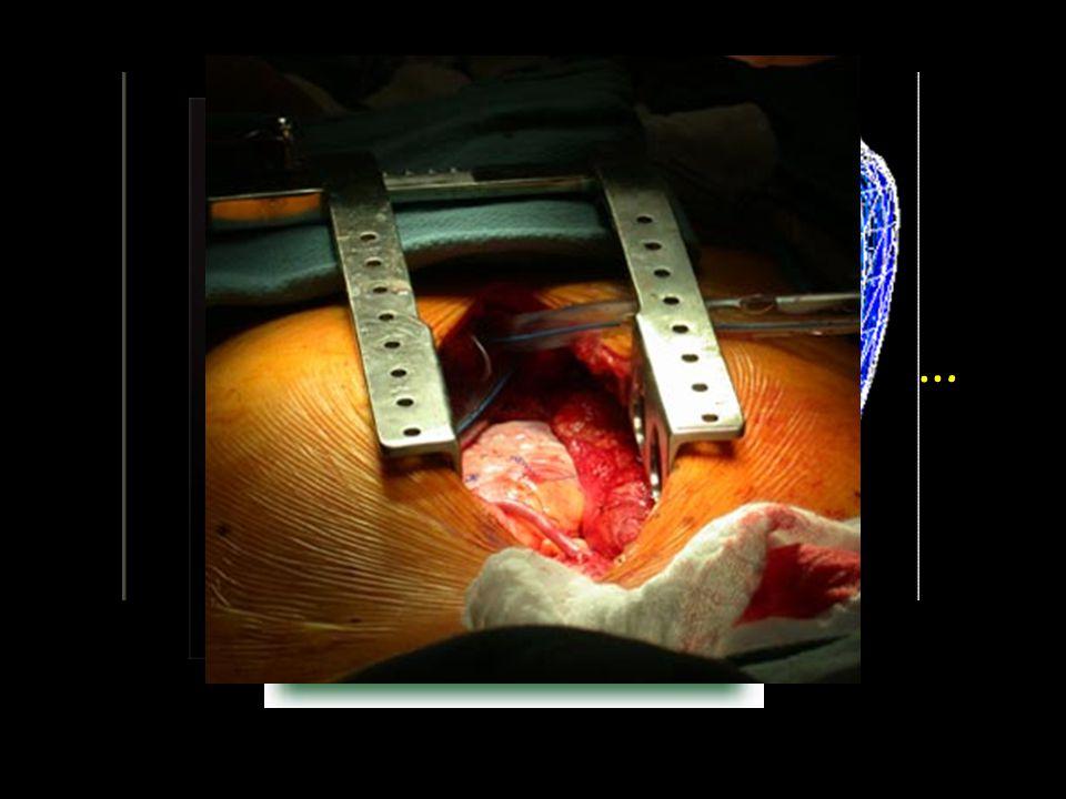 Και η καρδιά τι σχήμα έχει; Μοιάζει με ανάποδο αχλάδι…
