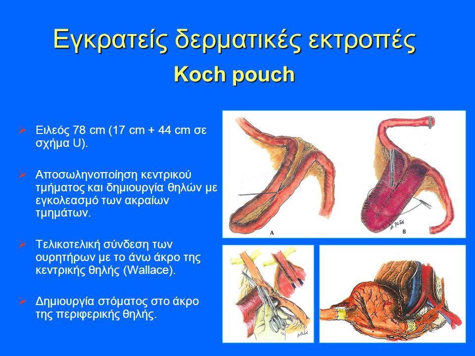 Εγκρατείς δερματικές εκτροπές Koch pouch