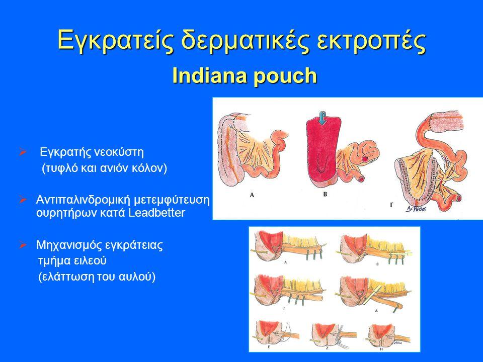 Εγκρατείς δερματικές εκτροπές Indiana pouch
