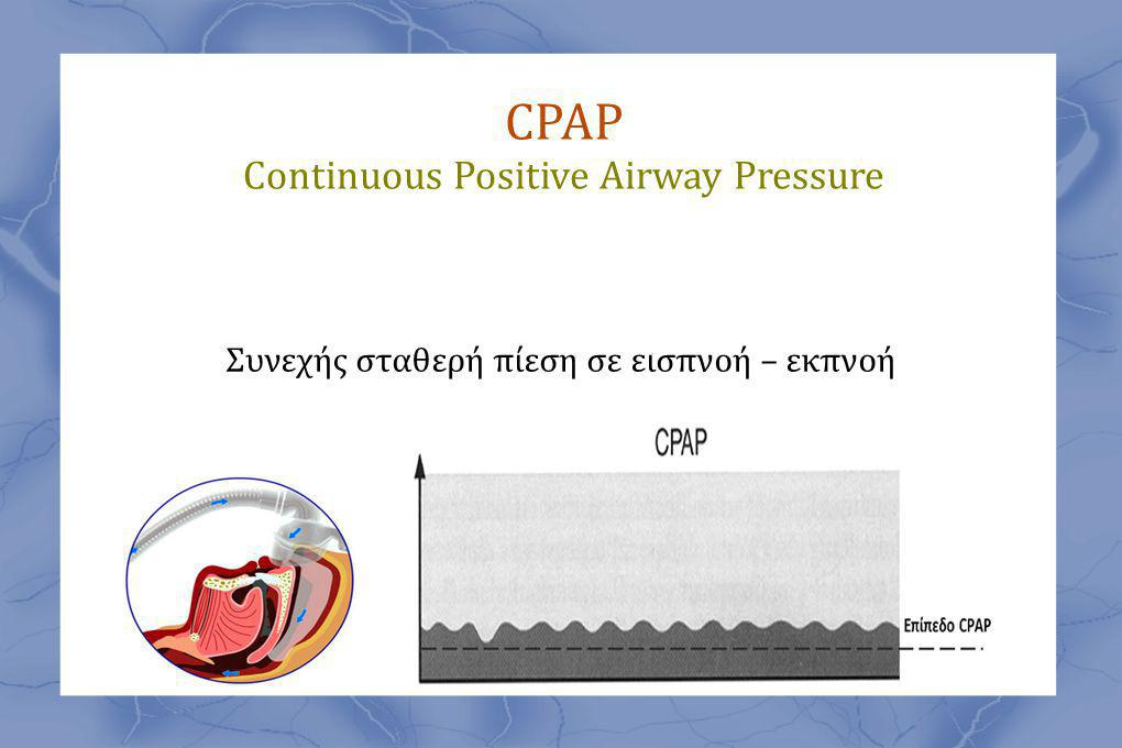 CPAP Continuous Positive Airway Pressure