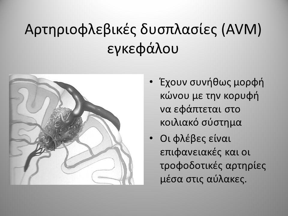 Αρτηριοφλεβικές δυσπλασίες (AVM) εγκεφάλου