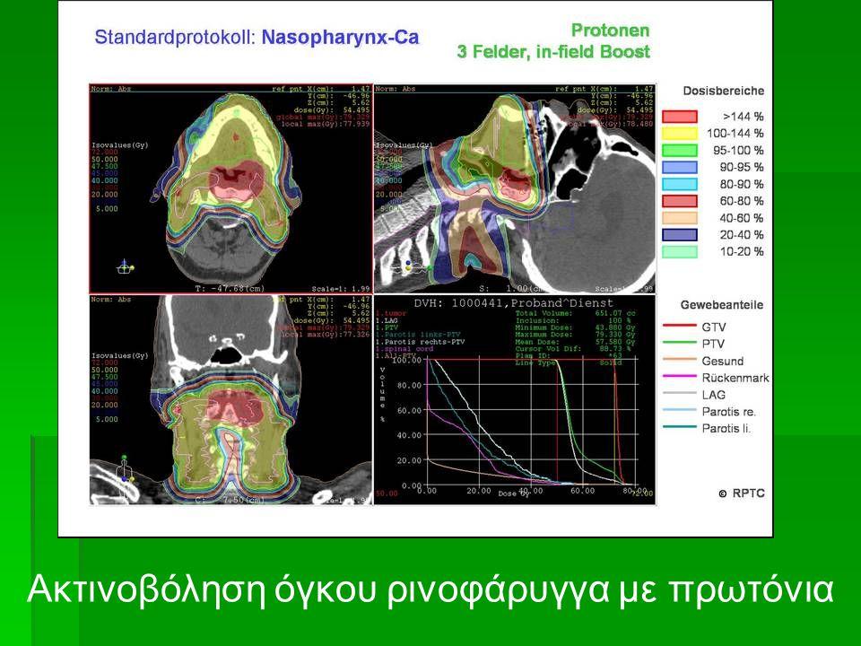 Ακτινοβόληση όγκου ρινοφάρυγγα με πρωτόνια