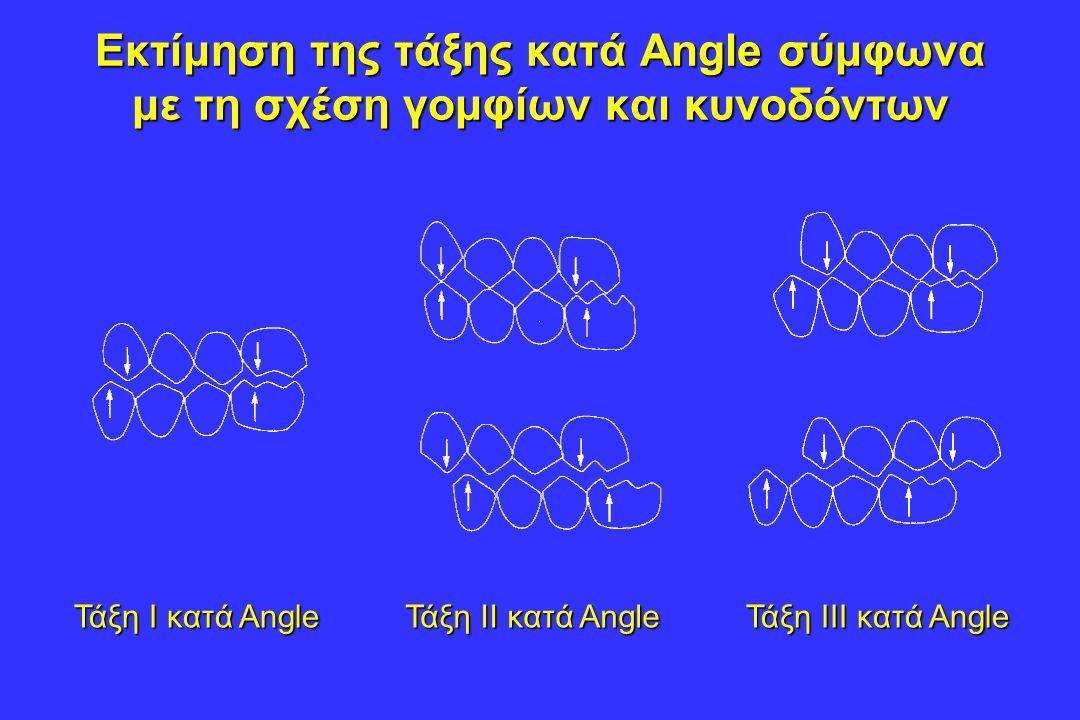 Εκτίμηση της τάξης κατά Angle σύμφωνα με τη σχέση γομφίων και κυνοδόντων