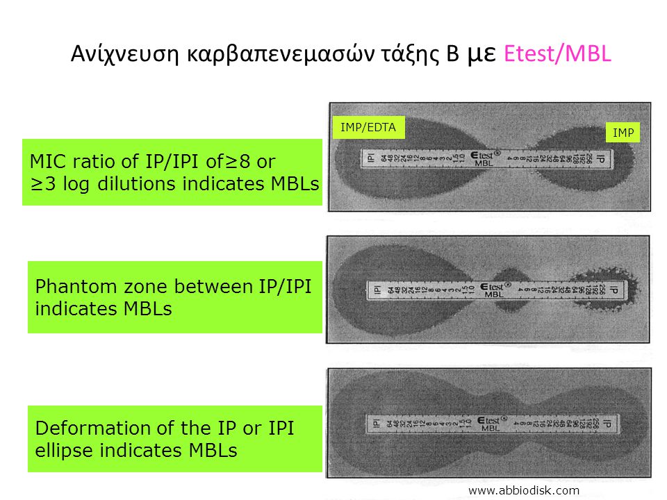 Ανίχνευση καρβαπενεμασών τάξης Β με Etest/MBL