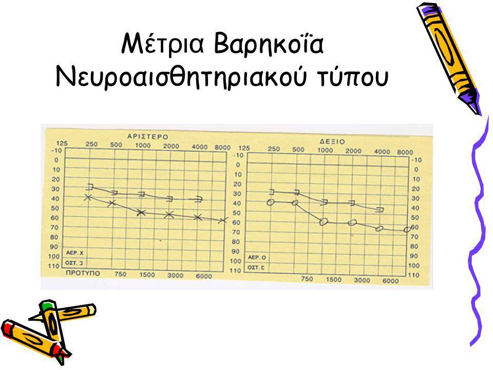 Μέτρια Βαρηκοΐα Νευροαισθητηριακού τύπου