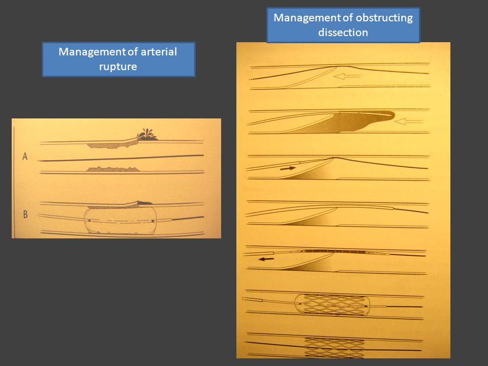 Management of obstructing dissection