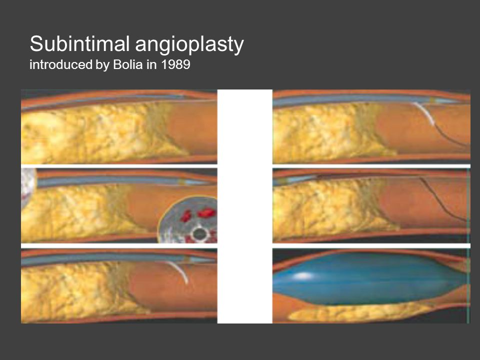 Subintimal angioplasty introduced by Bolia in 1989