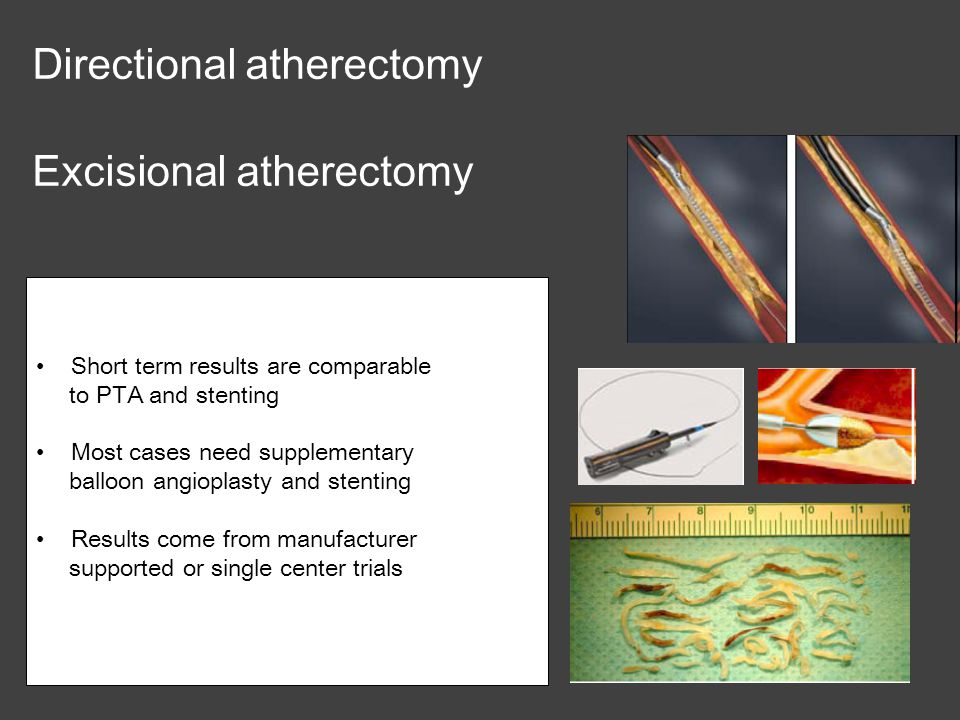 Directional atherectomy Excisional atherectomy
