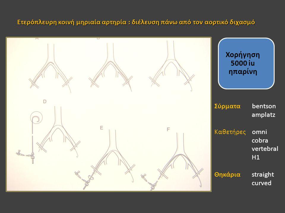 Ετερόπλευρη κοινή μηριαία αρτηρία : διέλευση πάνω από τον αορτικό διχασμό