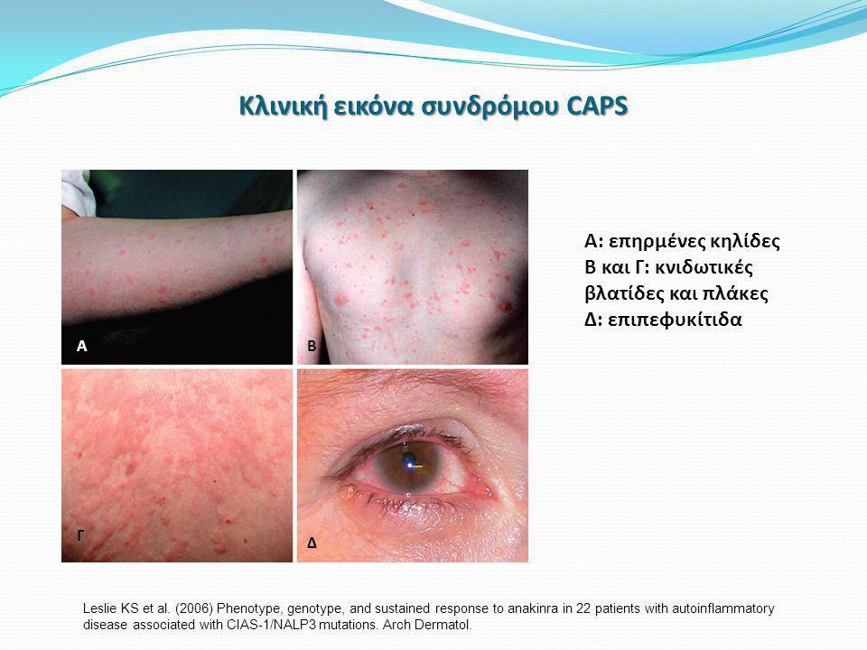 Κλινική εικόνα συνδρόμου CAPS