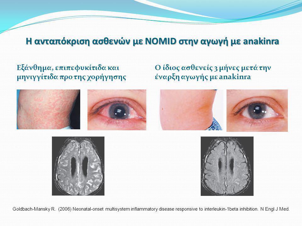 Η ανταπόκριση ασθενών με NOMID στην αγωγή με anakinra