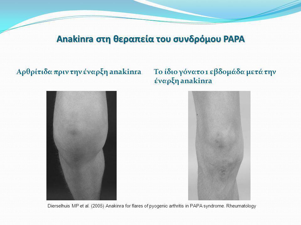 Anakinra στη θεραπεία του συνδρόμου PAPA