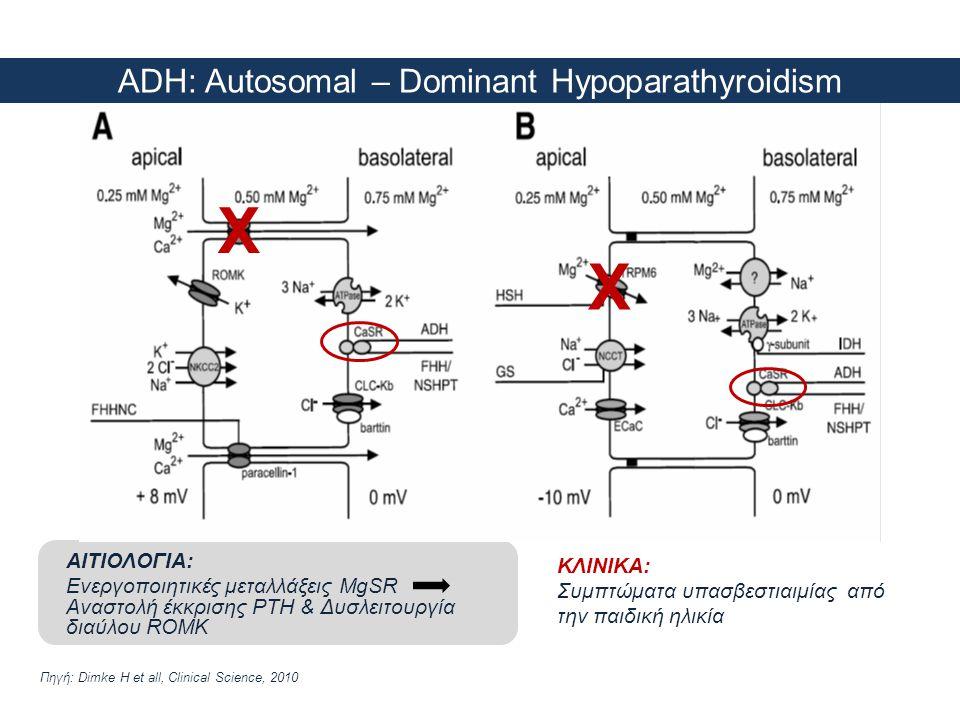 ADH: Autosomal – Dominant Hypoparathyroidism
