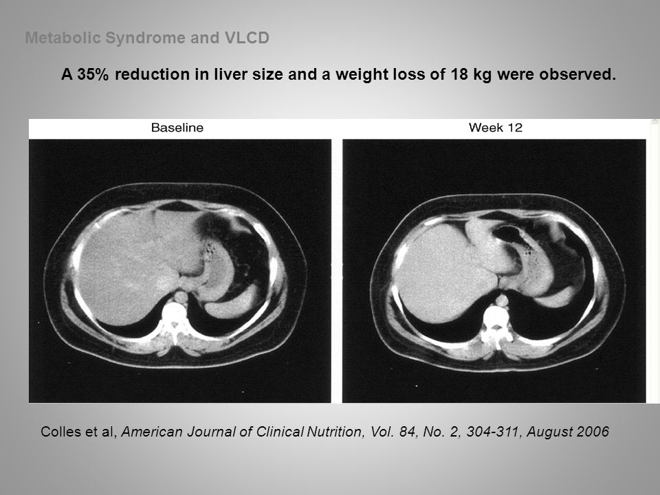 Metabolic Syndrome and VLCD