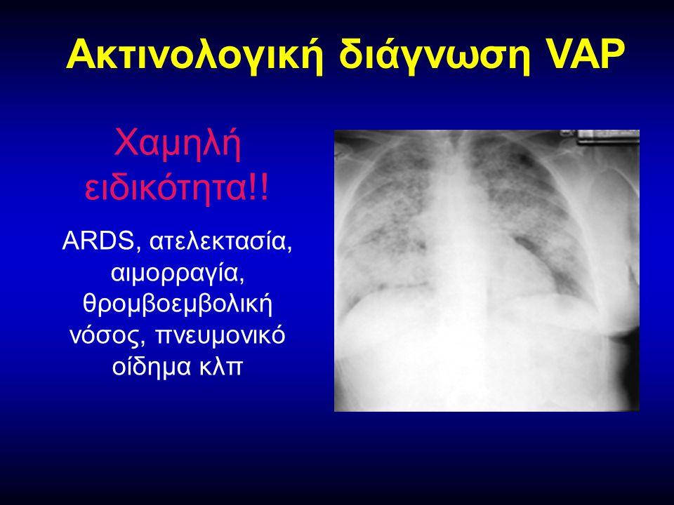 Ακτινολογική διάγνωση VAP