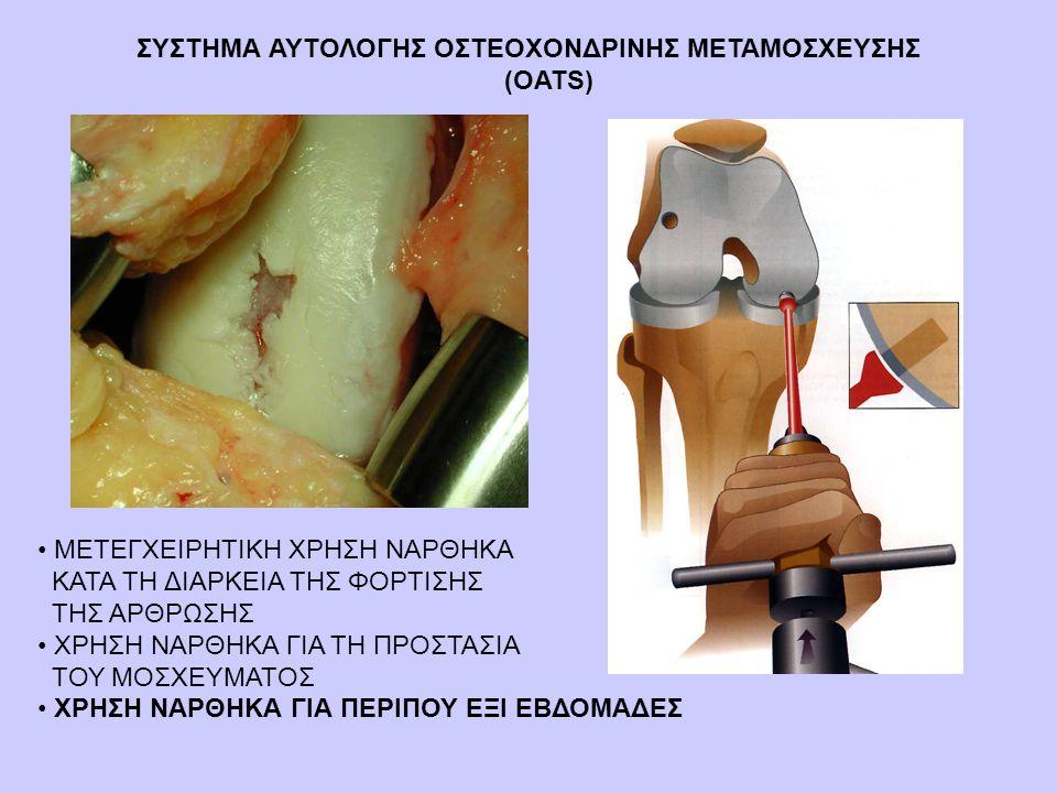 ΣΥΣΤΗΜΑ ΑΥΤΟΛΟΓΗΣ ΟΣΤΕΟΧΟΝΔΡΙΝΗΣ ΜΕΤΑΜΟΣΧΕΥΣΗΣ (OATS)
