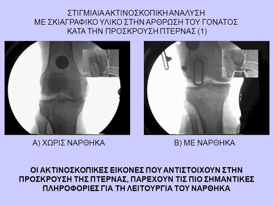 ΣΤΙΓΜΙΑΙΑ ΑΚΤΙΝΟΣΚΟΠΙΚΗ ΑΝΑΛΥΣΗ