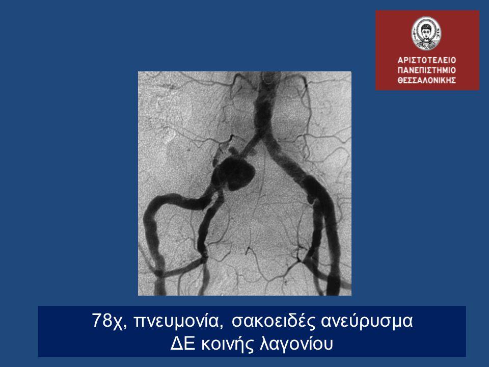 78χ, πνευμονία, σακοειδές ανεύρυσμα