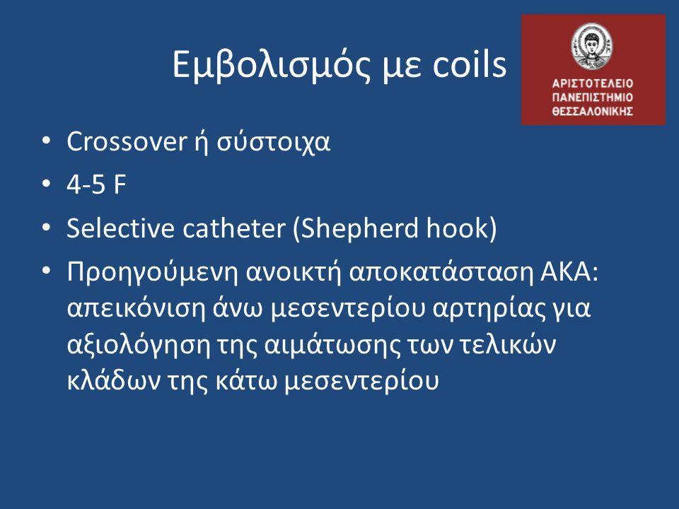 Εμβολισμός με coils Crossover ή σύστοιχα 4-5 F