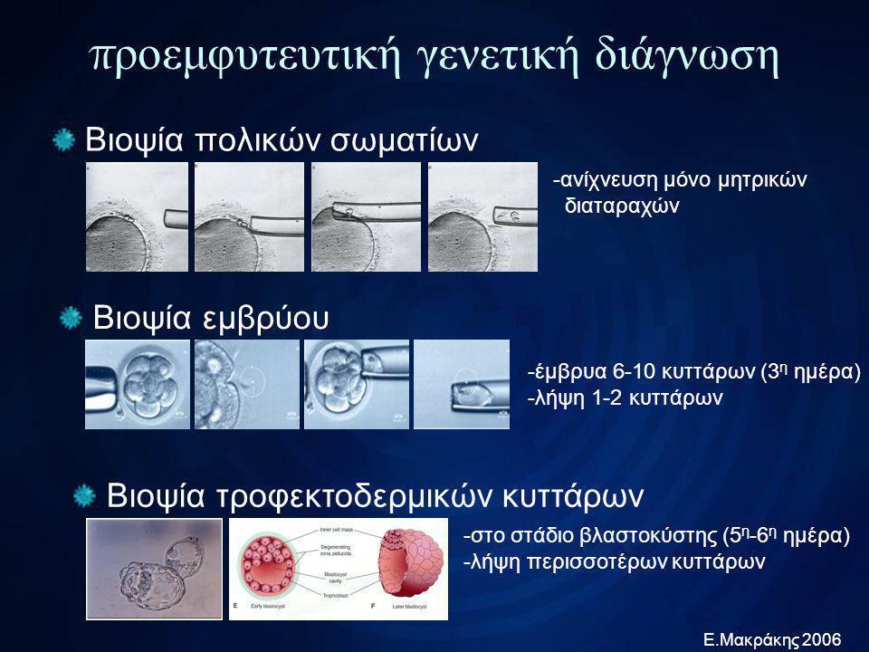 προεμφυτευτική γενετική διάγνωση