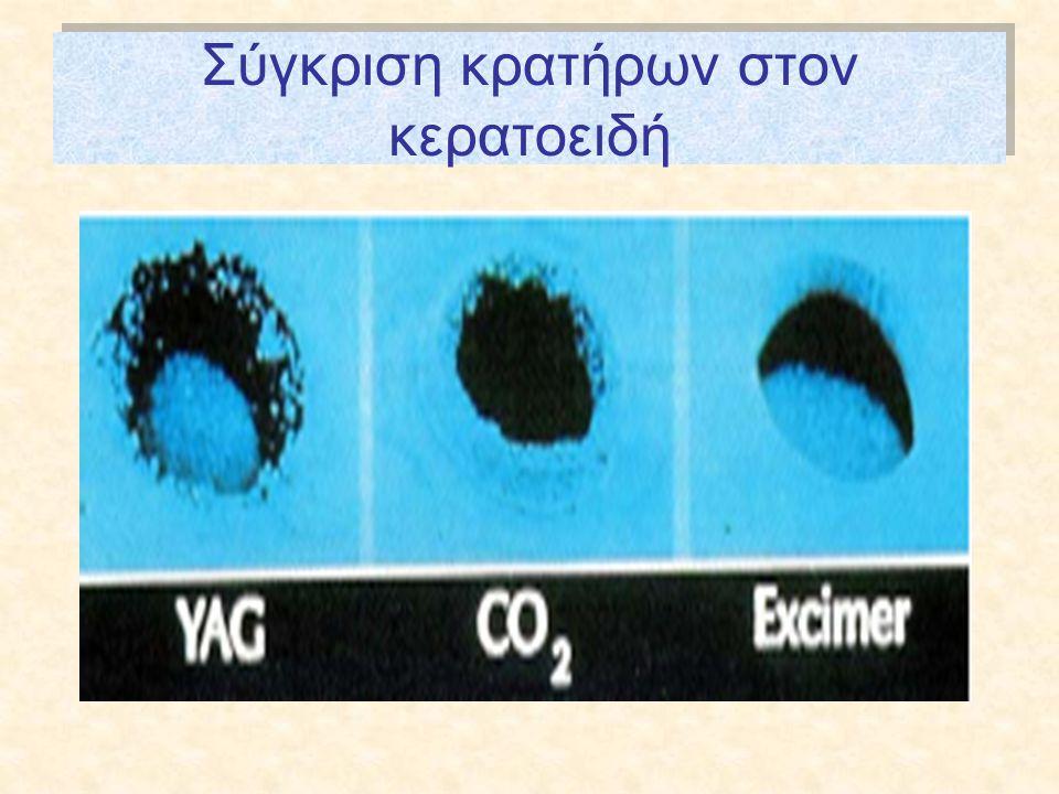 Σύγκριση κρατήρων στον κερατοειδή