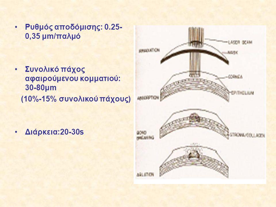 Ρυθμός αποδόμισης: 0.25-0,35 μm/παλμό