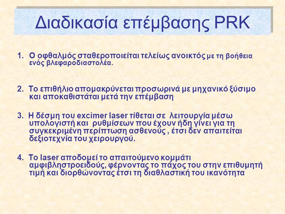 Διαδικασία επέμβασης PRK