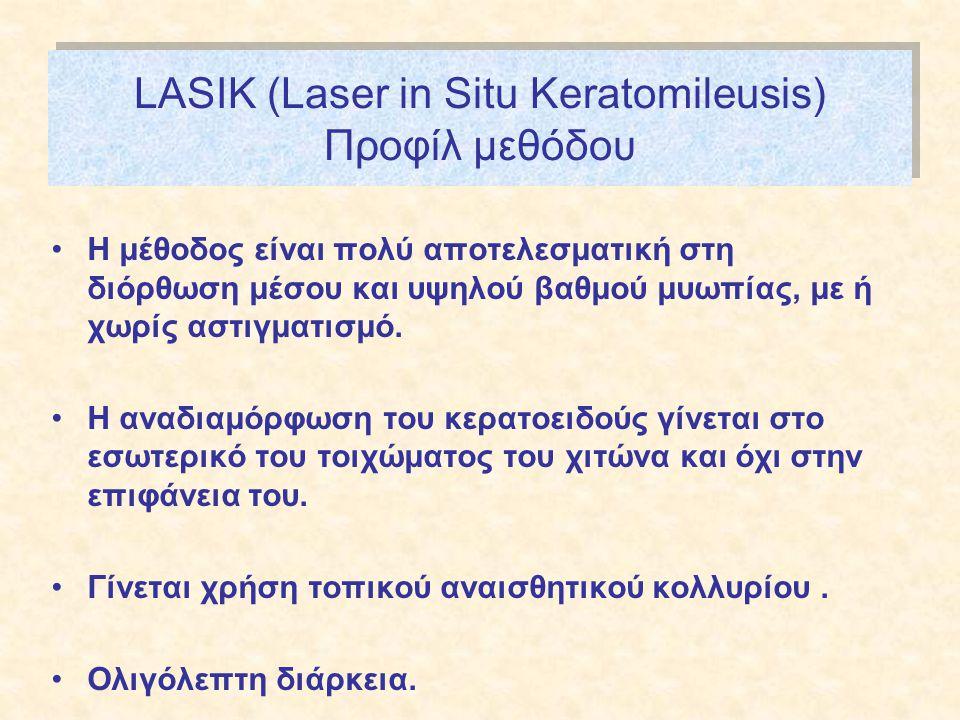 LASIK (Laser in Situ Keratomileusis) Προφίλ μεθόδου