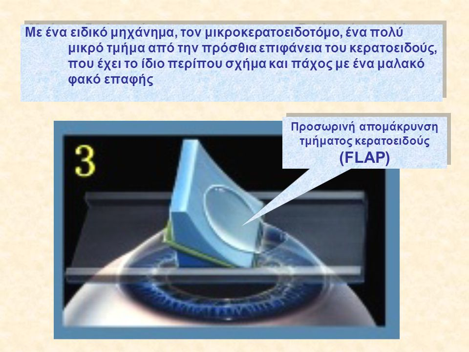 Προσωρινή απομάκρυνση τμήματος κερατοειδούς (FLAP)