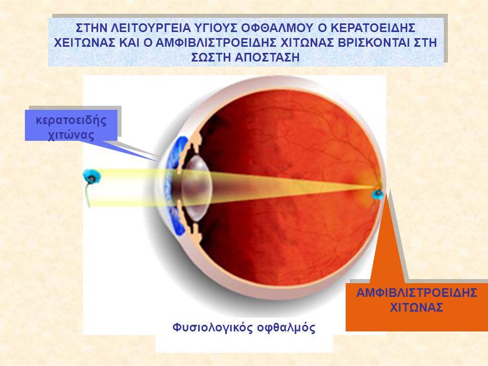 Φυσιολογικός οφθαλμός