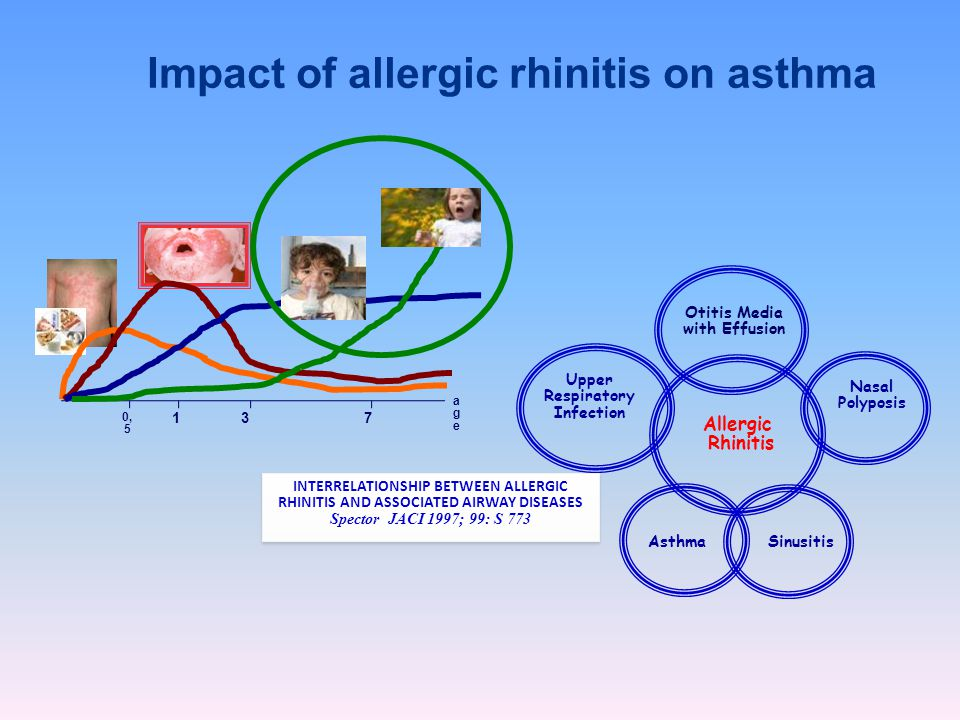 Impact of allergic rhinitis on asthma