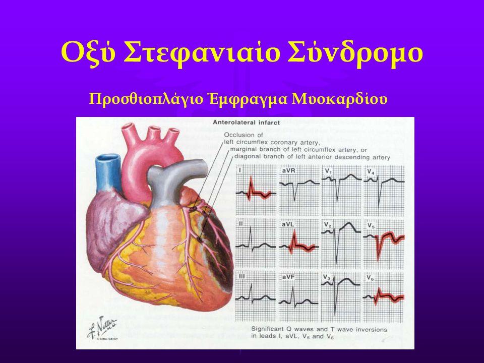 Οξύ Στεφανιαίο Σύνδρομο Προσθιοπλάγιο Έμφραγμα Μυοκαρδίου