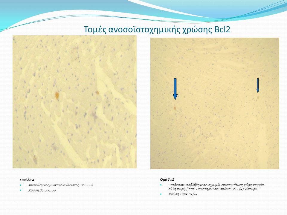 Τομές ανοσοϊστοχημικής χρώσης Bcl2
