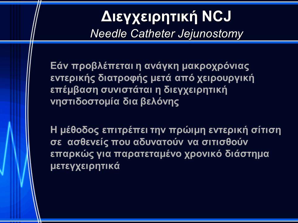 Διεγχειρητική NCJ Needle Catheter Jejunostomy