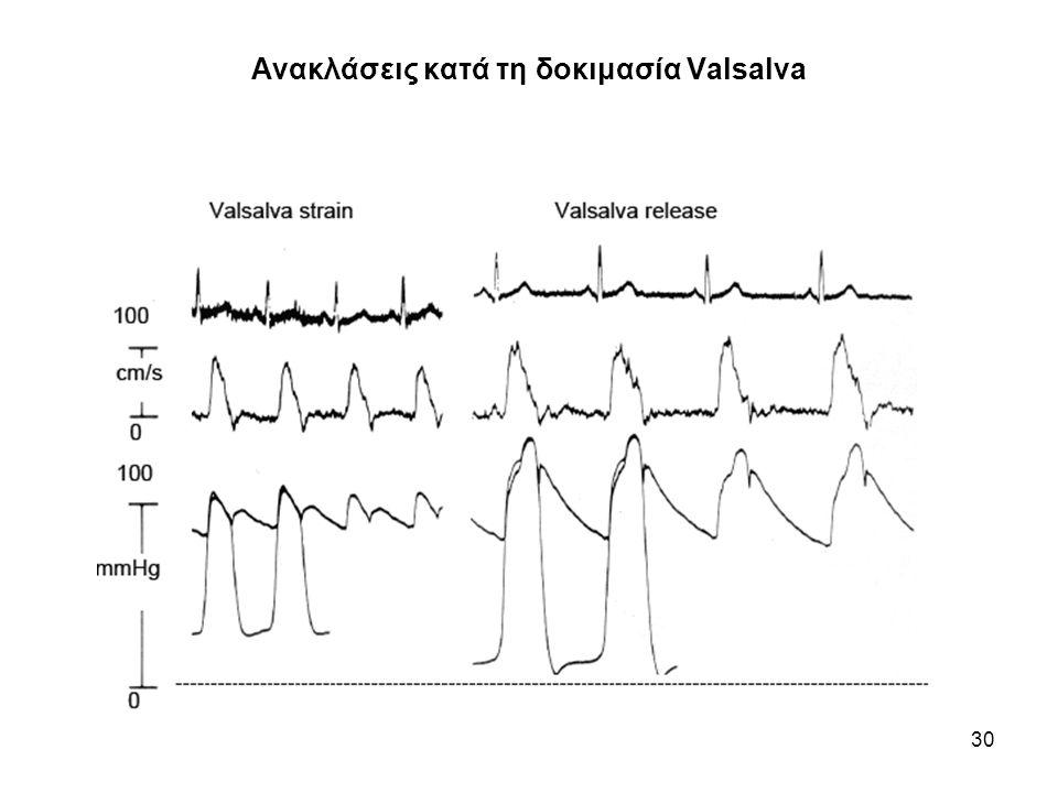Ανακλάσεις κατά τη δοκιμασία Valsalva
