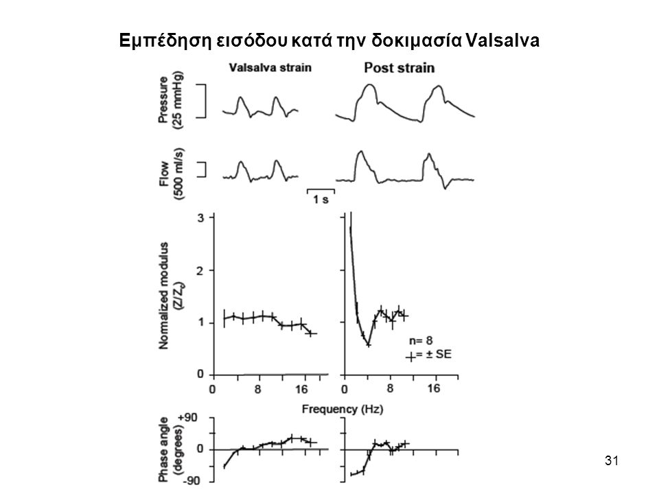 Εμπέδηση εισόδου κατά την δοκιμασία Valsalva