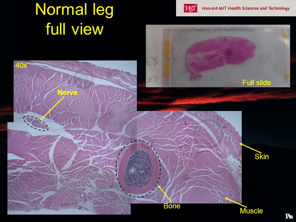 Normal leg full view 40x Full slide Nerve Skin Bone Muscle ₧