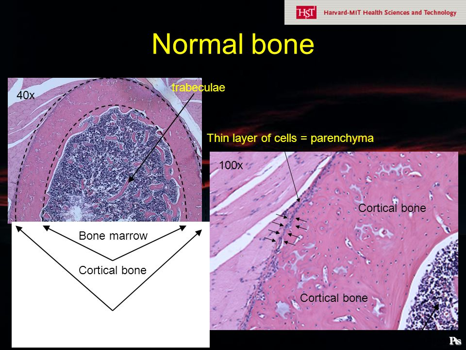 Normal bone trabeculae 40x Thin layer of cells = parenchyma 100x