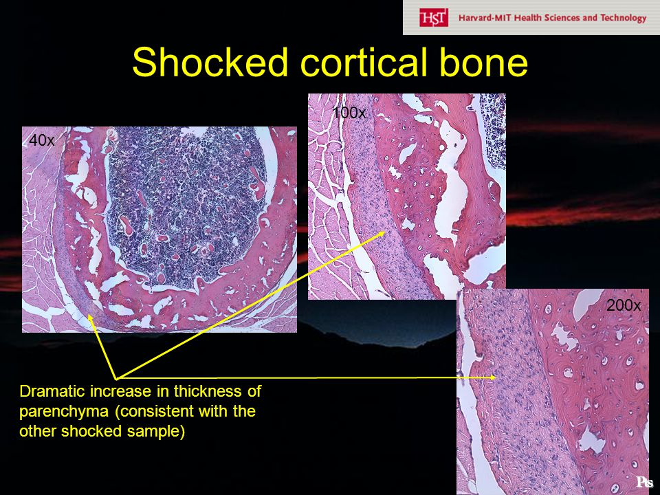 Shocked cortical bone 100x 40x 200x