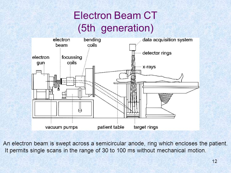 Electron Beam CT (5th generation)