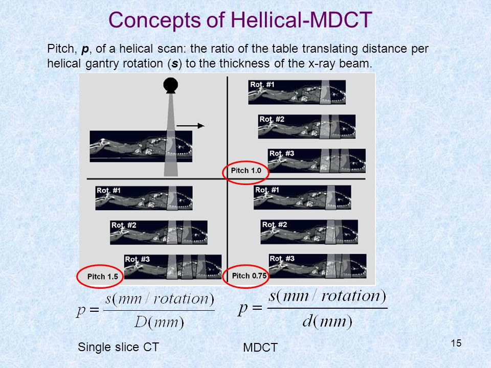Concepts of Hellical-MDCT
