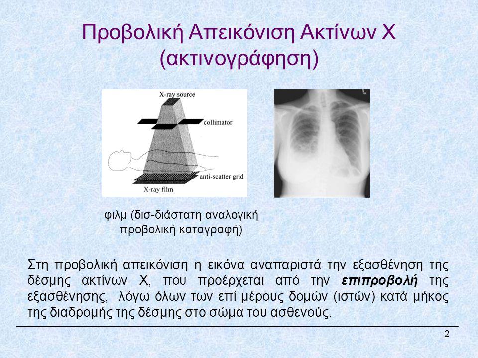 Προβολική Απεικόνιση Ακτίνων X (ακτινογράφηση)