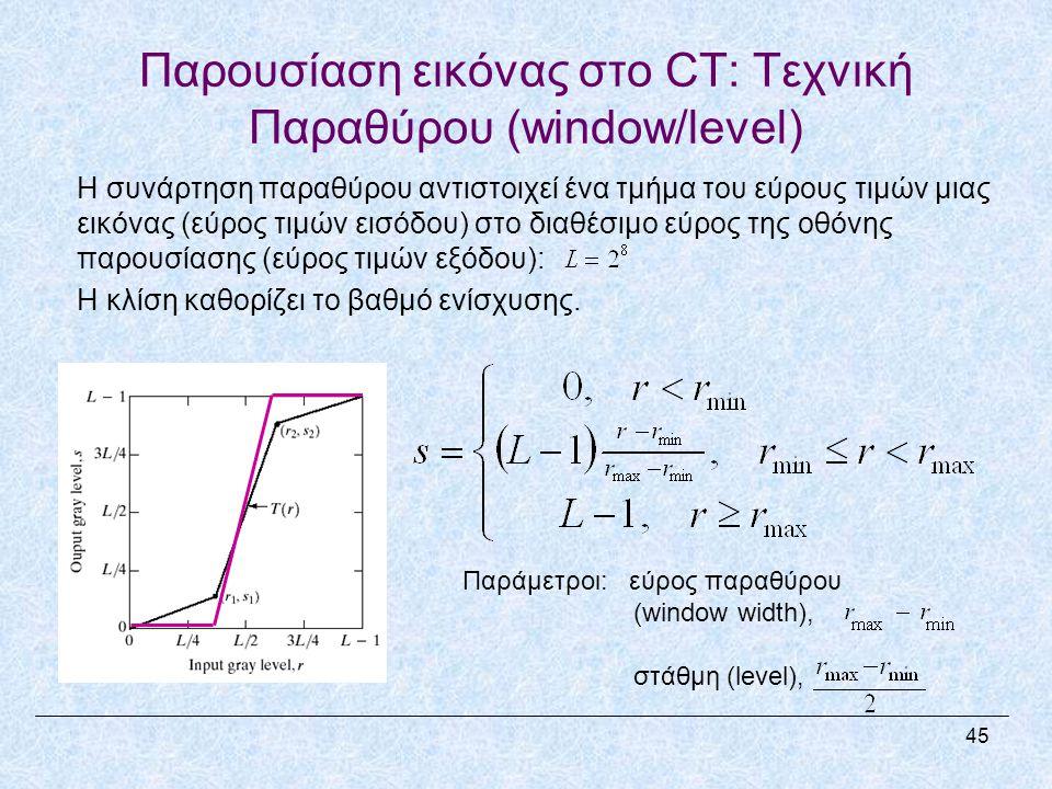 Παρουσίαση εικόνας στο CT: Τεχνική Παραθύρου (window/level)
