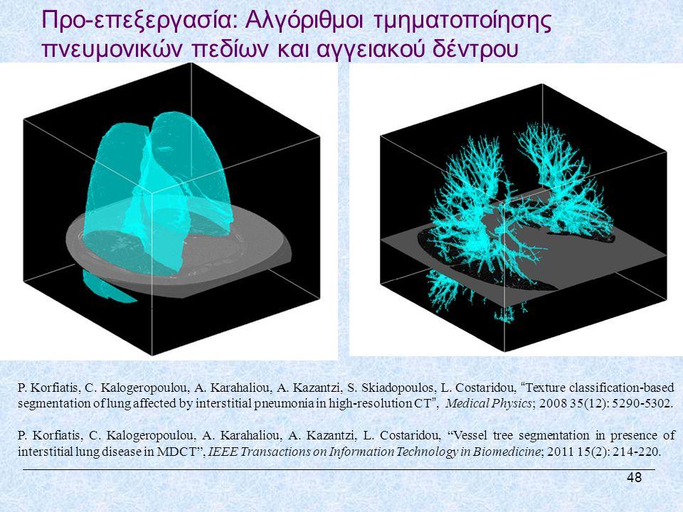 Προ-επεξεργασία: Αλγόριθμοι τμηματοποίησης πνευμονικών πεδίων και αγγειακού δέντρου