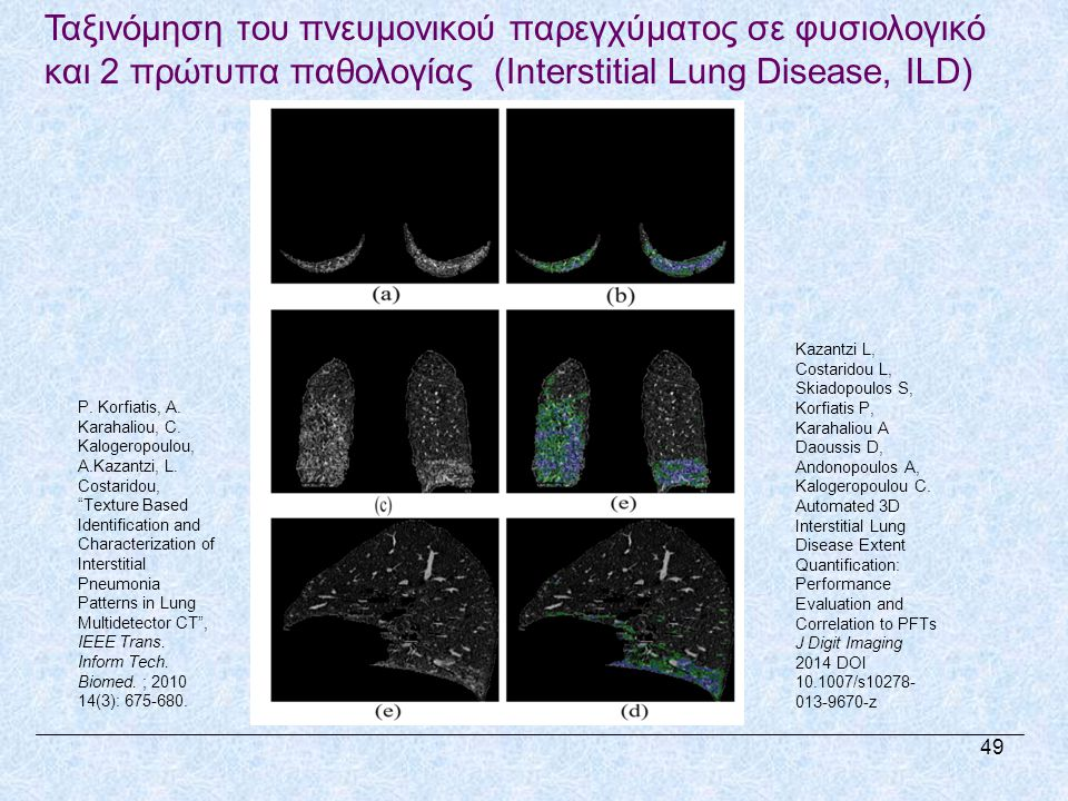 Ταξινόμηση του πνευμονικού παρεγχύματος σε φυσιολογικό και 2 πρώτυπα παθολογίας (Interstitial Lung Disease, ILD)