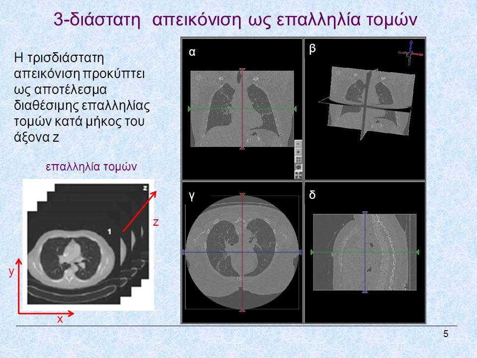 3-διάστατη απεικόνιση ως επαλληλία τομών