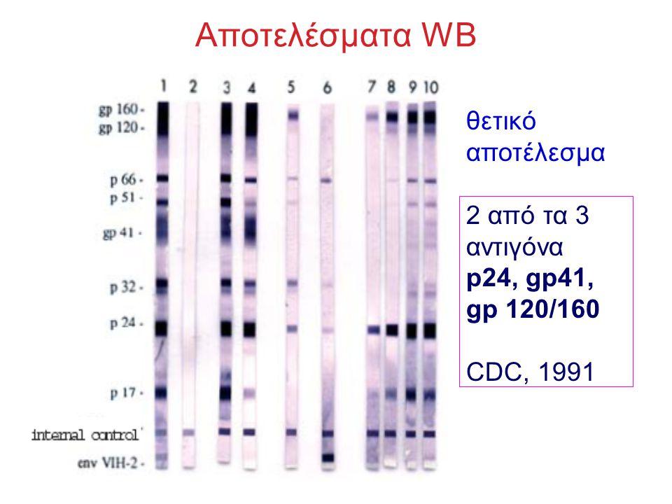 Αποτελέσματα WB θετικό αποτέλεσμα 2 από τα 3 αντιγόνα p24, gp41,