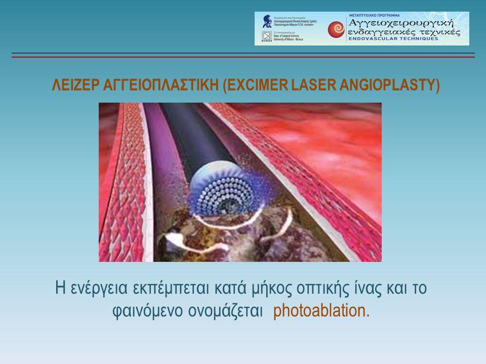 ΛΕΙΖΕΡ ΑΓΓΕΙΟΠΛΑΣΤΙΚΗ (EXCIMER LASER ANGIOPLASTY)