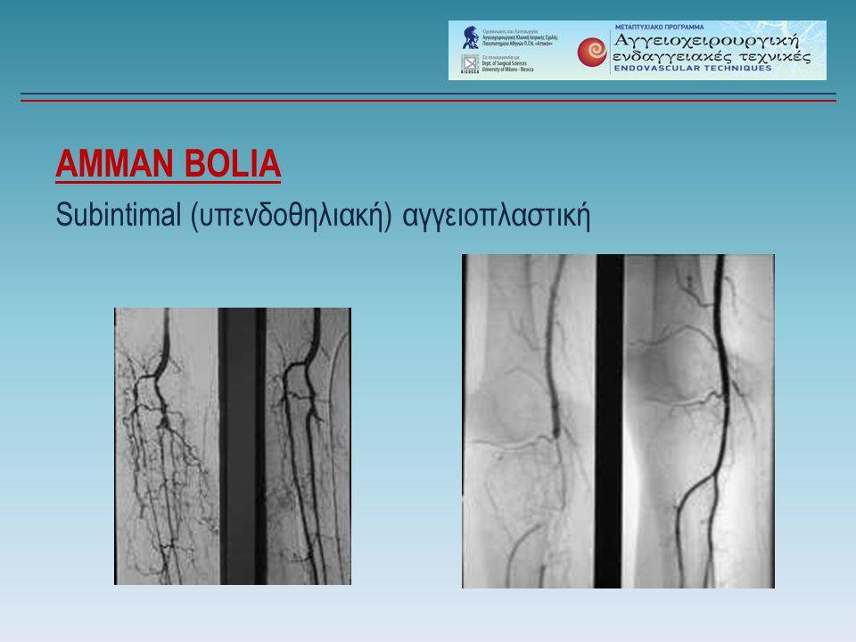 AMMAN BOLIA Subintimal (υπενδοθηλιακή) αγγειοπλαστική